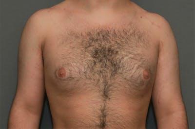 Gynecomastia Gallery - Patient 8284597 - Image 1