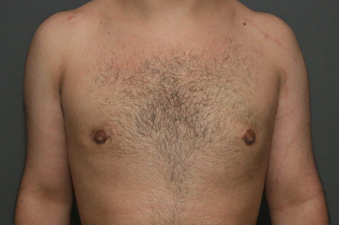 Gynecomastia Gallery - Patient 5157968 - Image 2