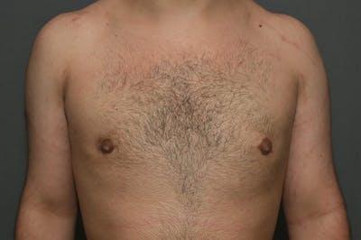 Gynecomastia Gallery - Patient 8284597 - Image 2