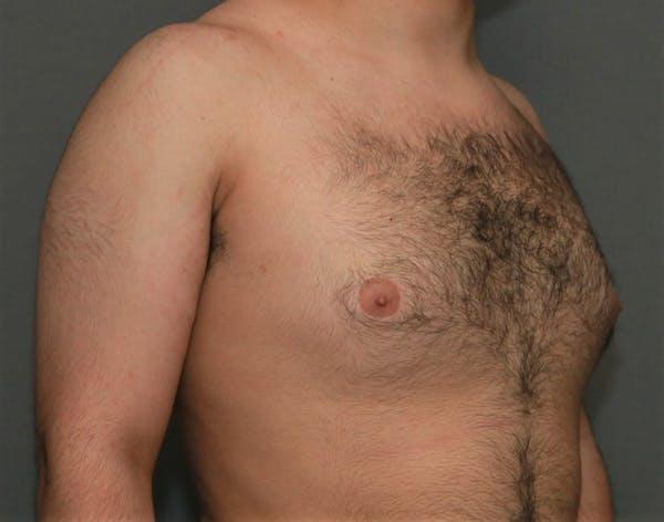 Gynecomastia Gallery - Patient 5157968 - Image 3
