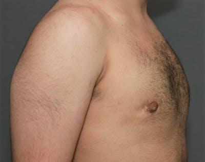 Gynecomastia Gallery - Patient 5157968 - Image 4