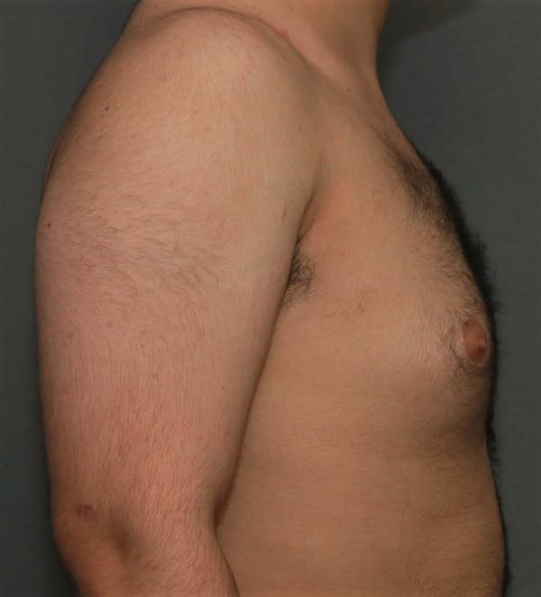 Gynecomastia Gallery - Patient 5157968 - Image 5