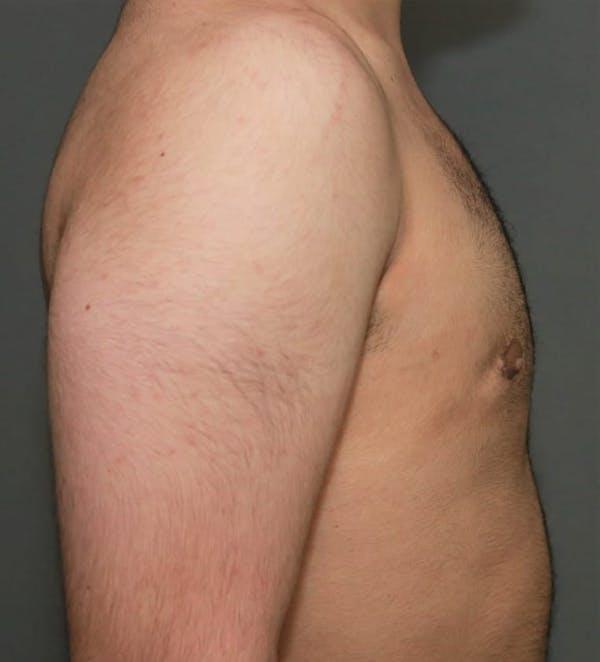 Gynecomastia Gallery - Patient 5157968 - Image 6