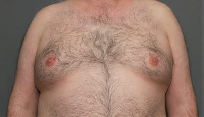 Gynecomastia Gallery - Patient 8284598 - Image 1