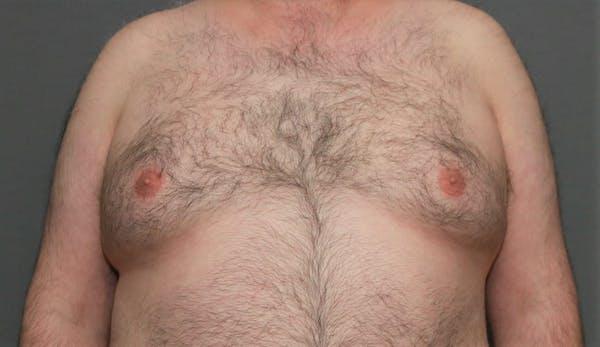 Gynecomastia Gallery - Patient 5157969 - Image 1