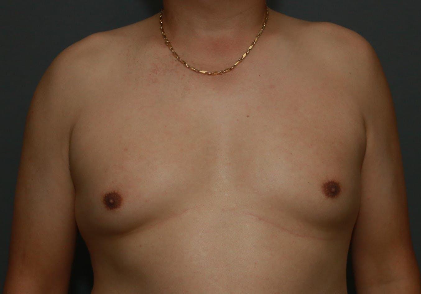 Gynecomastia Gallery - Patient 5157970 - Image 1