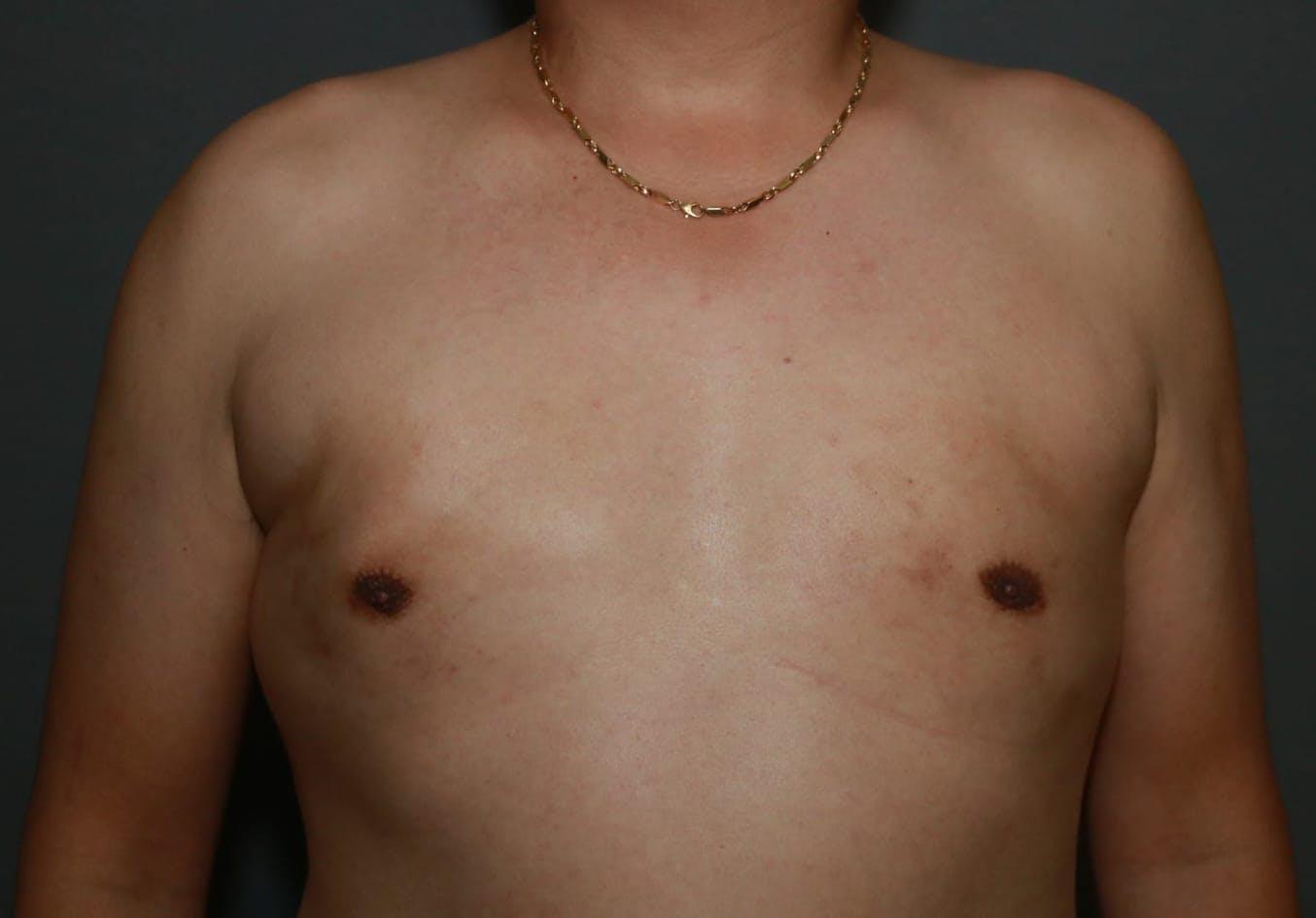 Gynecomastia Gallery - Patient 5157970 - Image 2