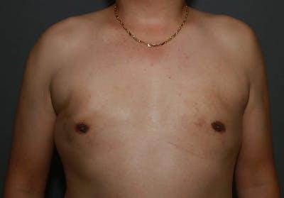 Gynecomastia Gallery - Patient 8284599 - Image 2