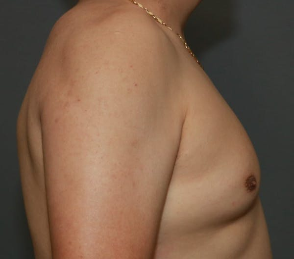 Gynecomastia Gallery - Patient 5157970 - Image 5