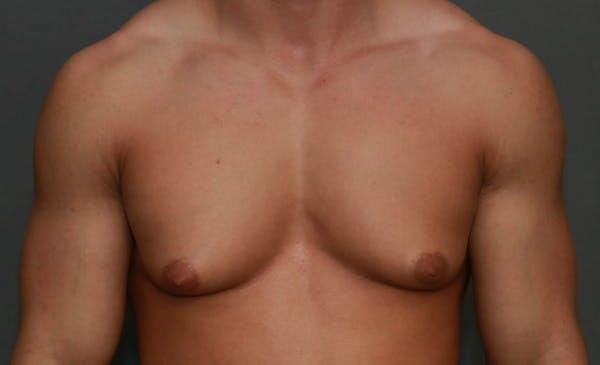 Gynecomastia Gallery - Patient 5157971 - Image 1