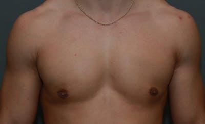 Gynecomastia Gallery - Patient 8284600 - Image 2