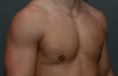 Gynecomastia Gallery - Patient 5157971 - Image 4