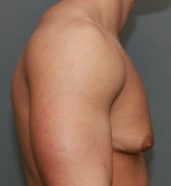 Gynecomastia Gallery - Patient 5157971 - Image 5