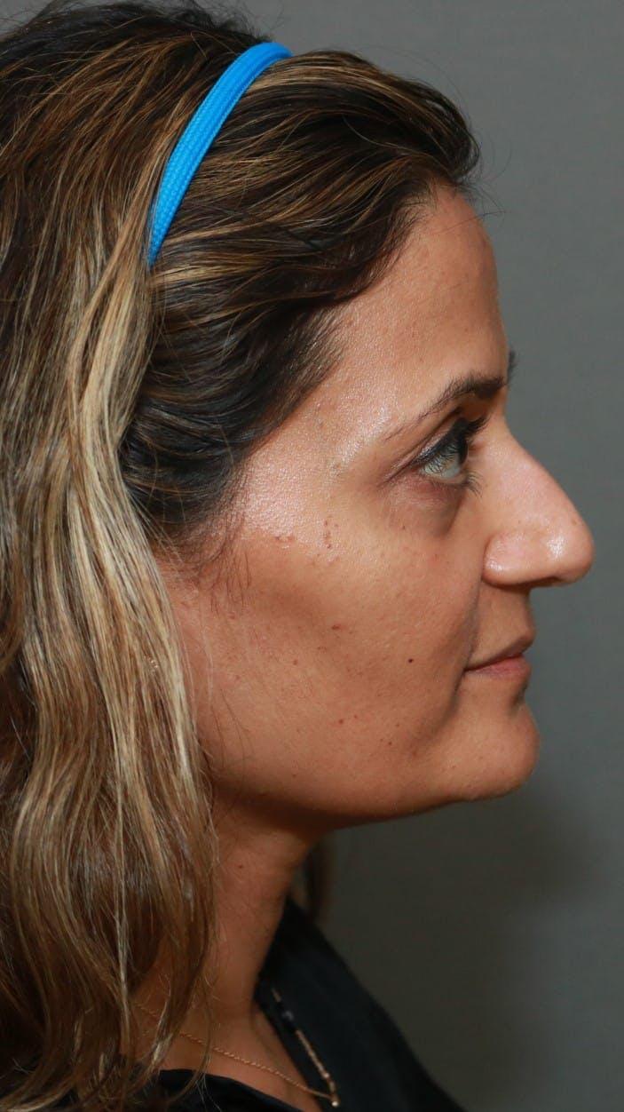 Halo Skin Resurfacing Gallery - Patient 5174759 - Image 1