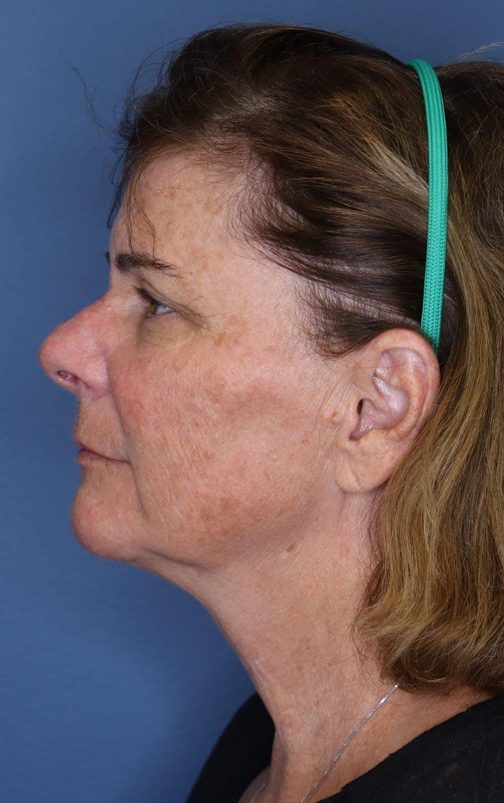 Halo Skin Resurfacing Gallery - Patient 5174760 - Image 1