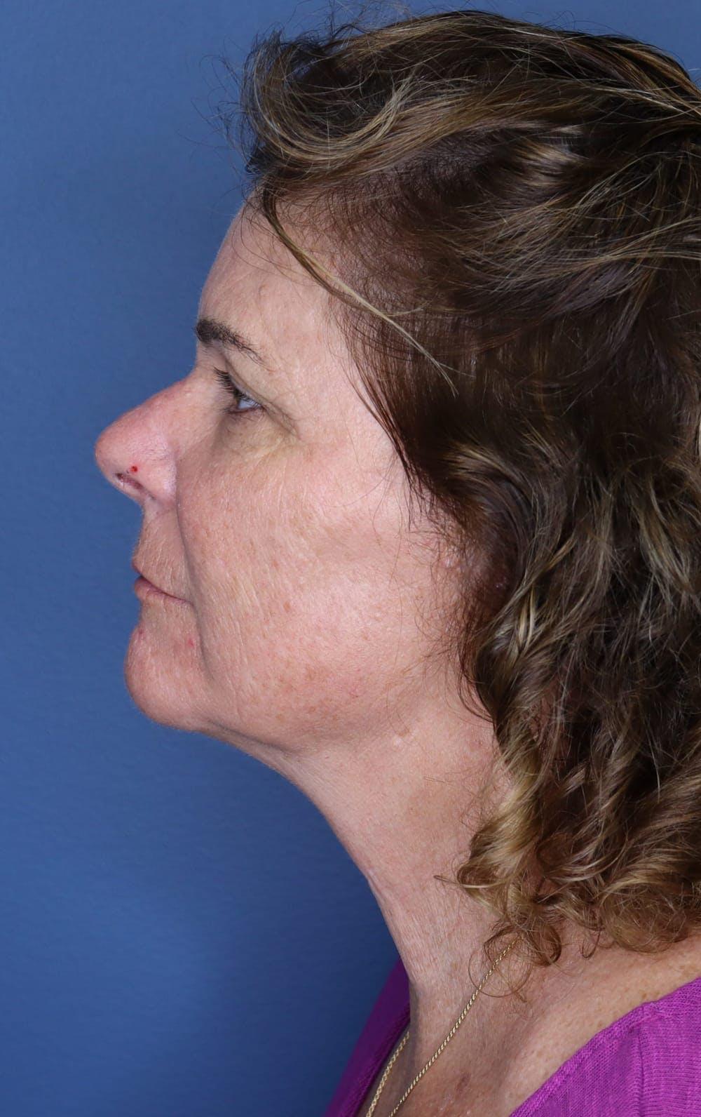 Halo Skin Resurfacing Gallery - Patient 5174760 - Image 2
