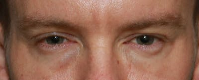 Lower Blepharoplasty Gallery - Patient 5158127 - Image 1