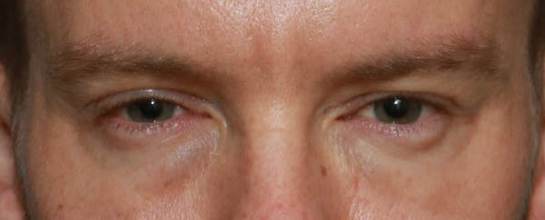 Lower Blepharoplasty Gallery - Patient 5158176 - Image 1