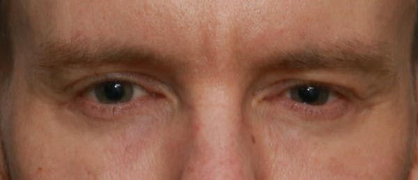 Lower Blepharoplasty Gallery - Patient 5158176 - Image 2