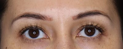 Upper Blepharoplasty Gallery - Patient 5158180 - Image 1