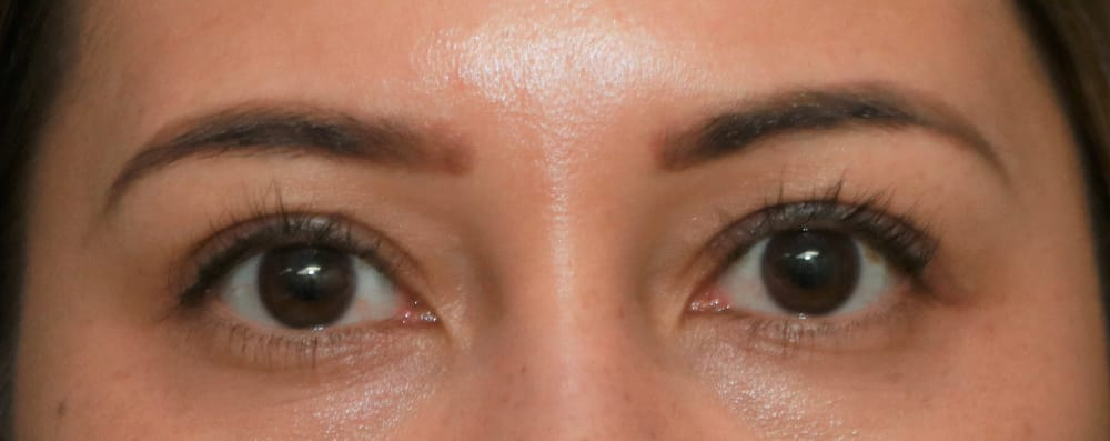 Upper Blepharoplasty in Orange County