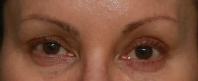 Upper Blepharoplasty Gallery - Patient 5158181 - Image 2