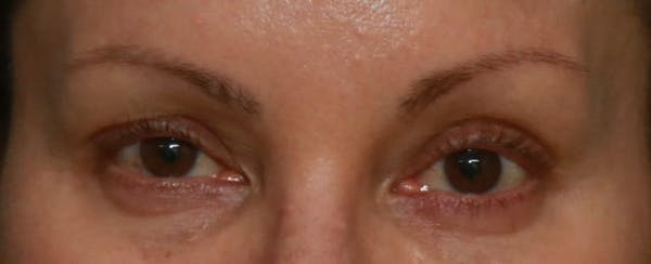 Upper Blepharoplasty Gallery - Patient 5158181 - Image 1