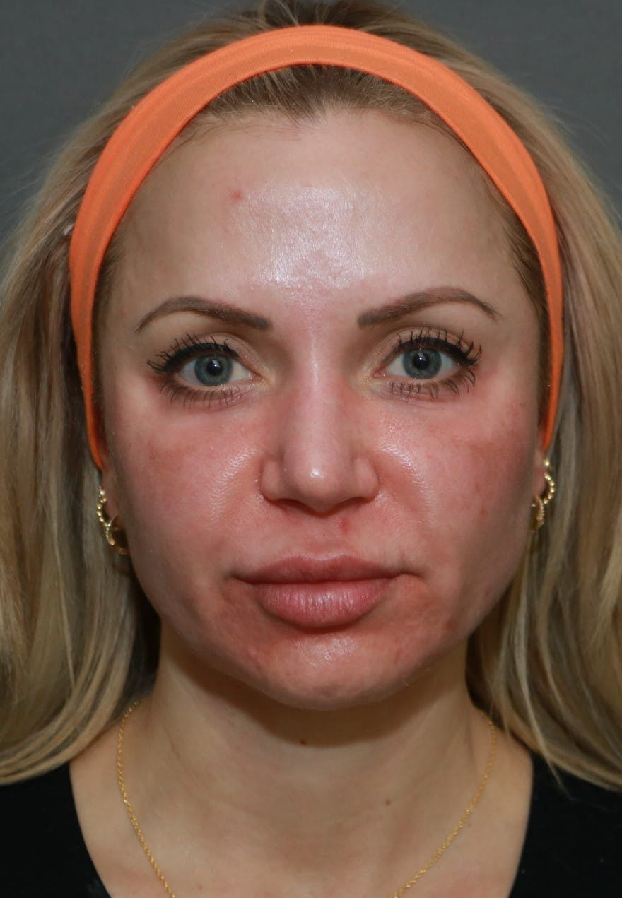 Halo Skin Resurfacing Gallery - Patient 5174764 - Image 1