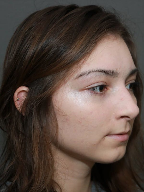 Aesthetic Rhinoplasty Gallery - Patient 5164566 - Image 3