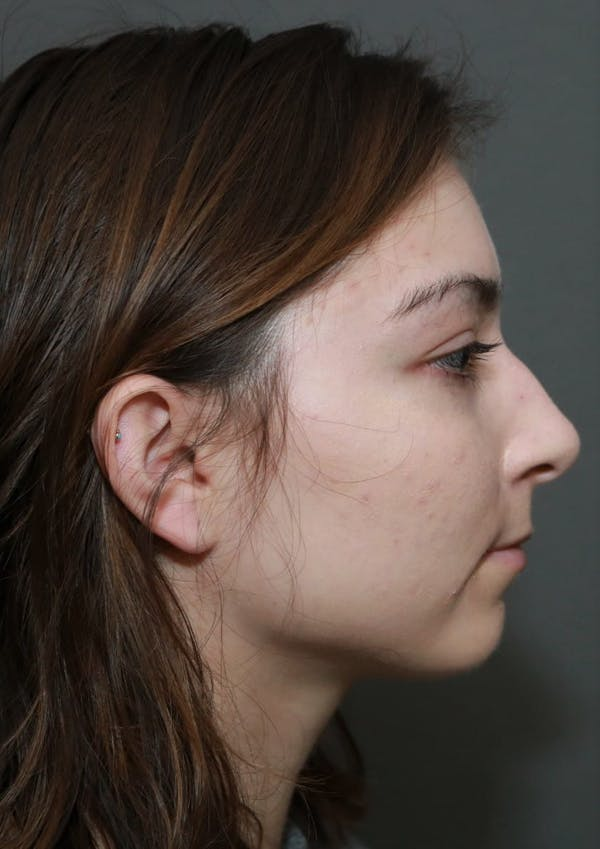 Aesthetic Rhinoplasty Gallery - Patient 5164566 - Image 5