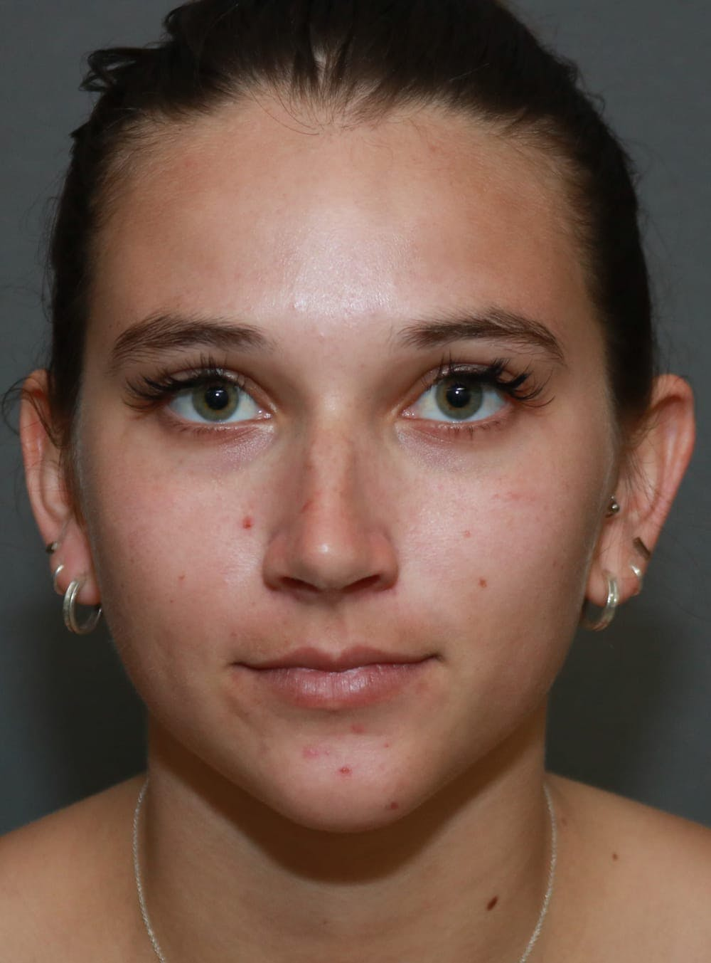 Aesthetic Rhinoplasty Gallery - Patient 5164567 - Image 1