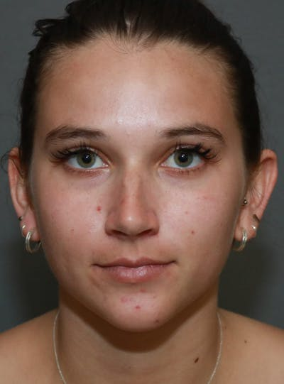 Aesthetic Rhinoplasty Gallery - Patient 5164567 - Image 12