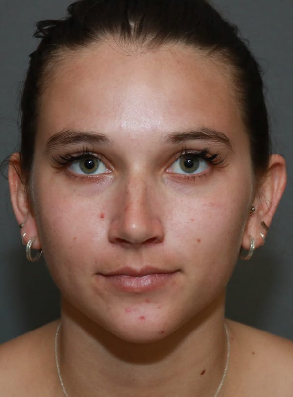 Aesthetic Rhinoplasty Gallery - Patient 5164567 - Image 1