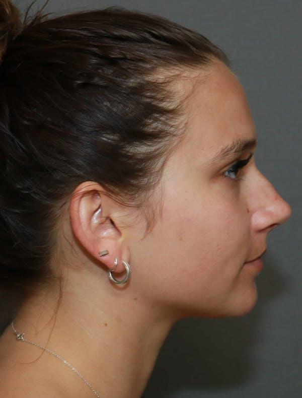 Aesthetic Rhinoplasty Gallery - Patient 5164567 - Image 5