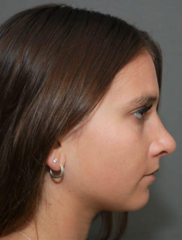 Aesthetic Rhinoplasty Gallery - Patient 5164567 - Image 6