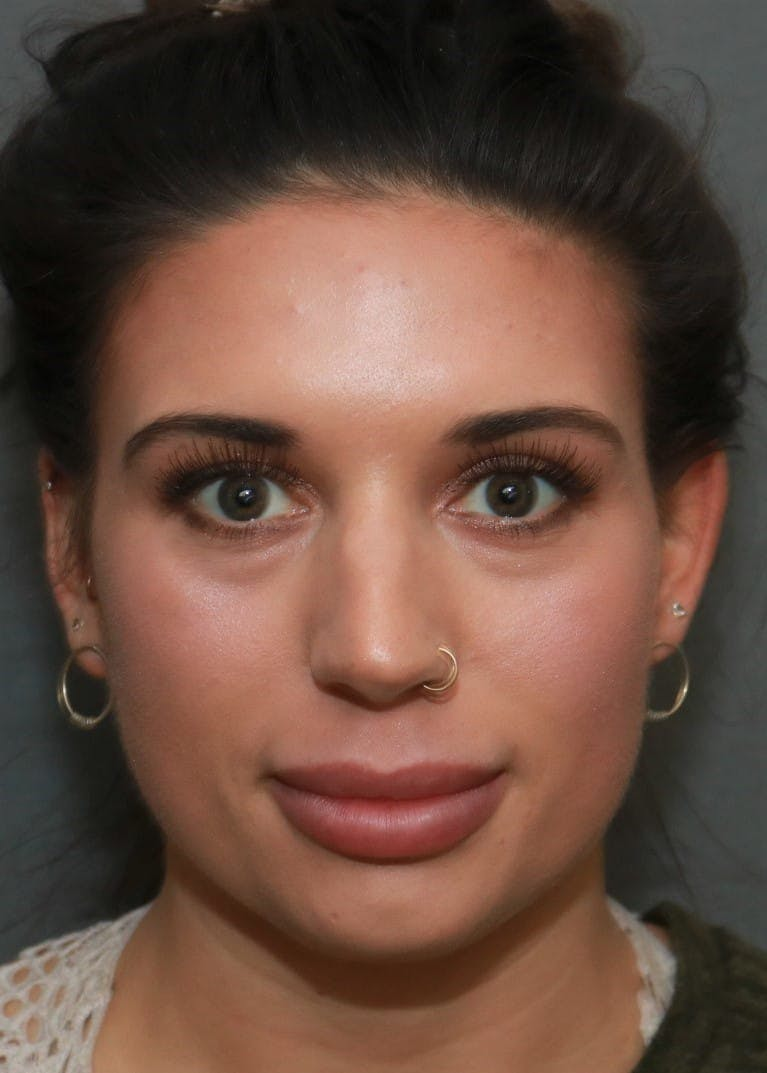 Aesthetic Rhinoplasty Gallery - Patient 5164568 - Image 1