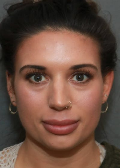 Aesthetic Rhinoplasty Gallery - Patient 5164568 - Image 13