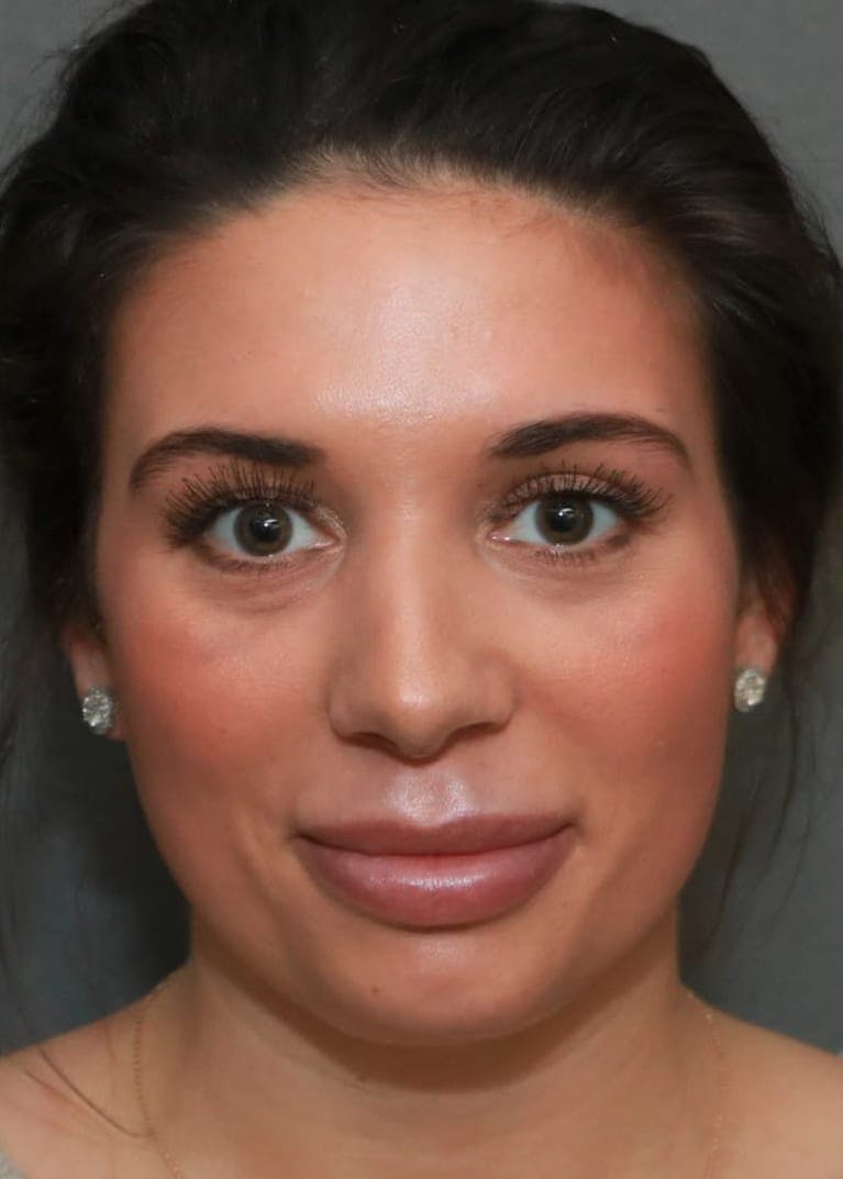 Aesthetic Rhinoplasty Gallery - Patient 5164568 - Image 2