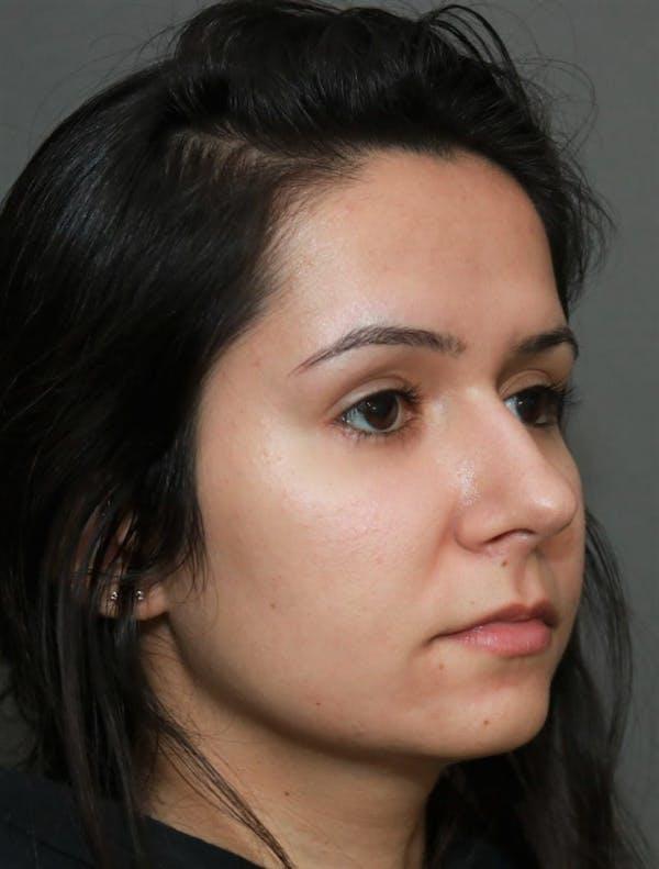 Aesthetic Rhinoplasty Gallery - Patient 5164569 - Image 3