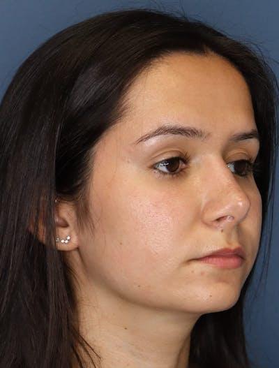 Aesthetic Rhinoplasty Gallery - Patient 5164569 - Image 4