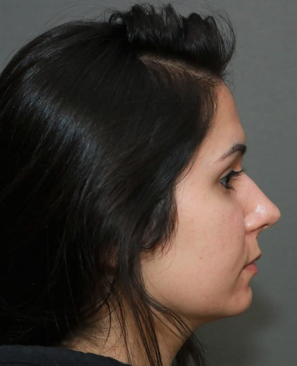 Aesthetic Rhinoplasty Gallery - Patient 5164569 - Image 5