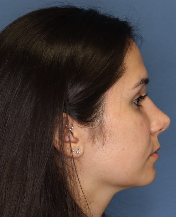 Aesthetic Rhinoplasty Gallery - Patient 5164569 - Image 6