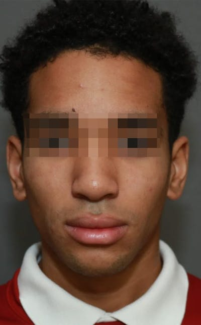 Functional Rhinoplasty Gallery - Patient 5164605 - Image 2