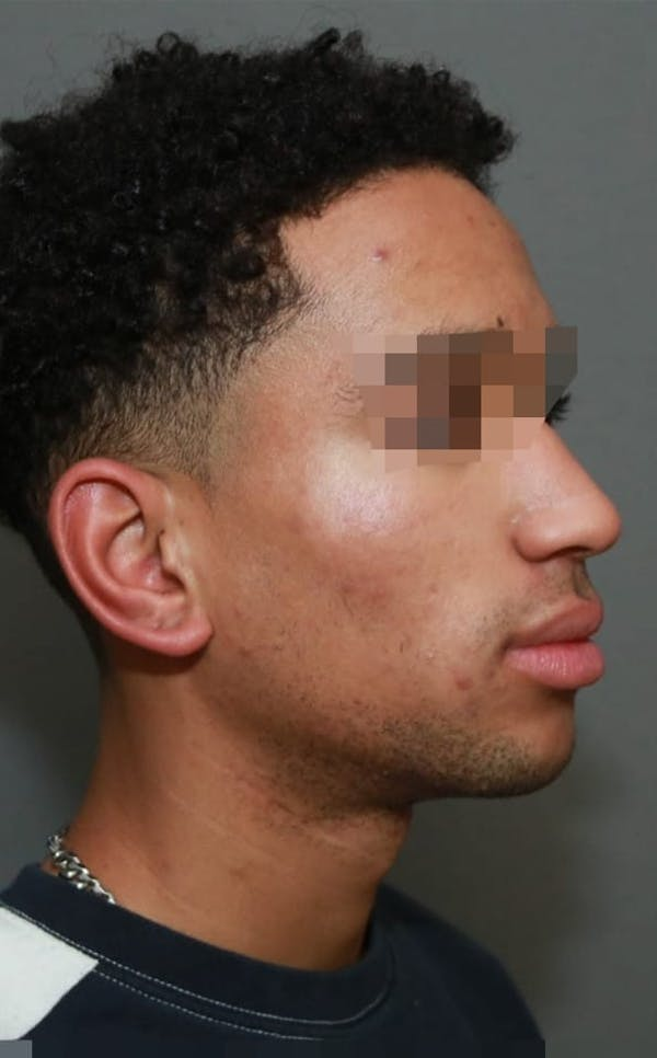 Functional Rhinoplasty Gallery - Patient 5164605 - Image 3