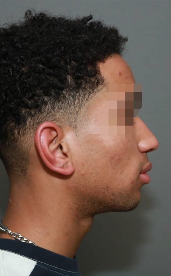 Functional Rhinoplasty Gallery - Patient 5164605 - Image 5