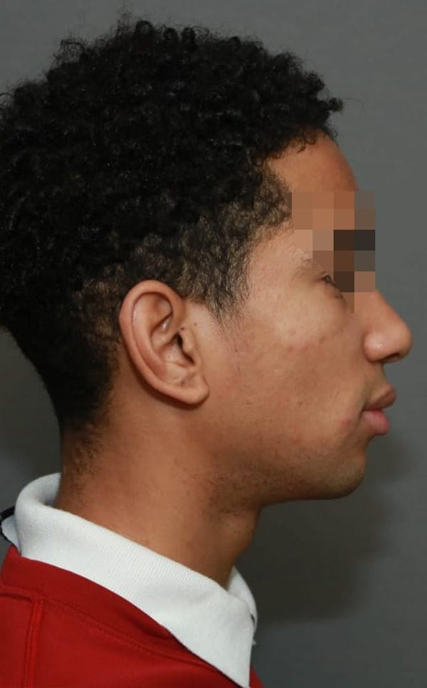 Functional Rhinoplasty Gallery - Patient 5164605 - Image 6