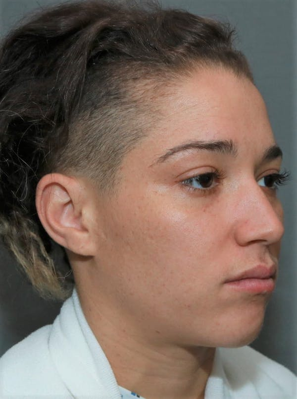 Functional Rhinoplasty Gallery - Patient 5164606 - Image 3