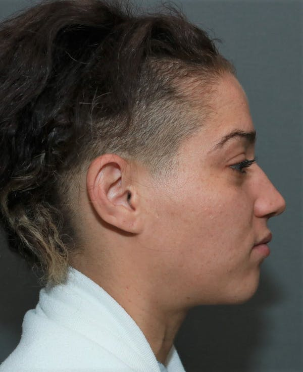 Functional Rhinoplasty Gallery - Patient 5164606 - Image 5