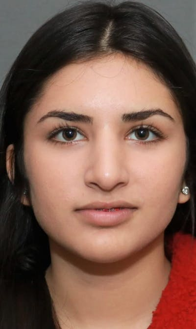 Ethnic Rhinoplasty Gallery - Patient 5164609 - Image 2