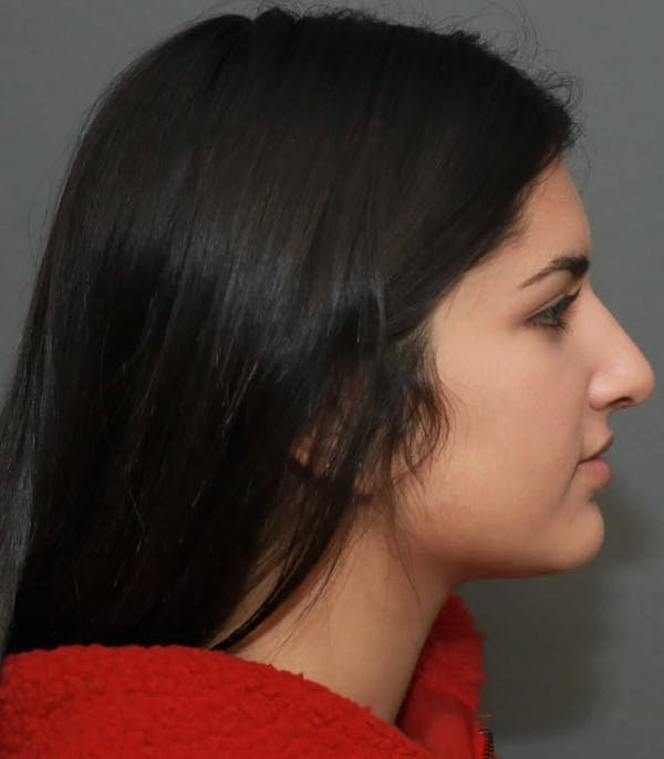 Ethnic Rhinoplasty Gallery - Patient 5164609 - Image 6